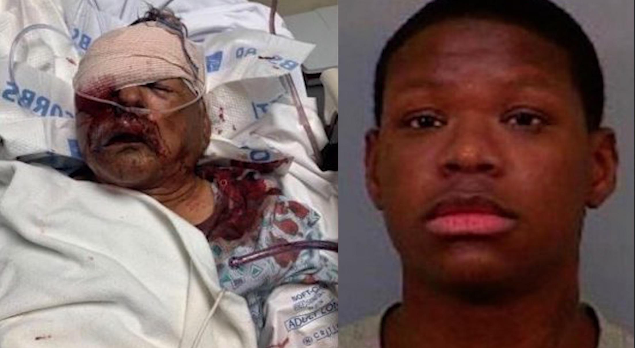 Anciano latino golpeado a morir por un afroamericano - El Latinaso Noticias